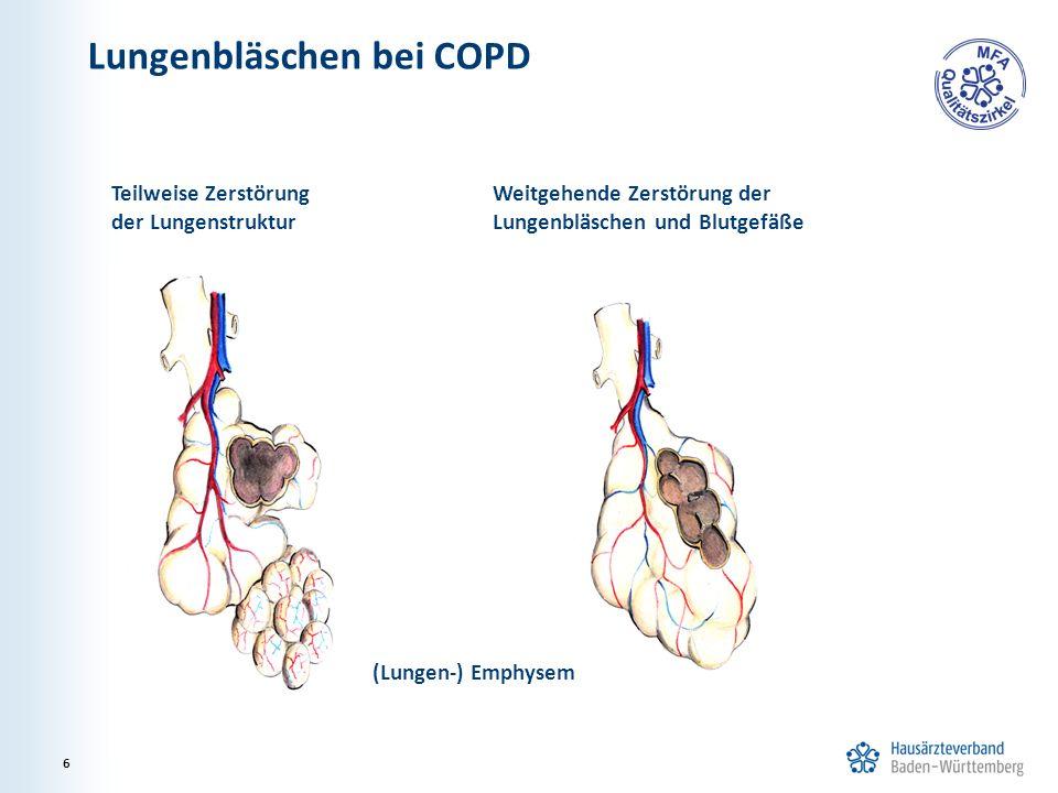 Lungenbläschen bei COPD Teilweise Zerstörung der Lungenstruktur Weitgehende Zerstörung der Lungenbläschen und Blutgefäße (Lungen-) Emphysem 6