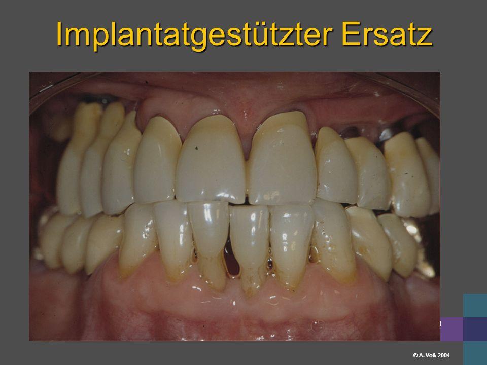 Universitätsklinikum Erlangen © A. Voß 2004 Implantatgestützter Ersatz