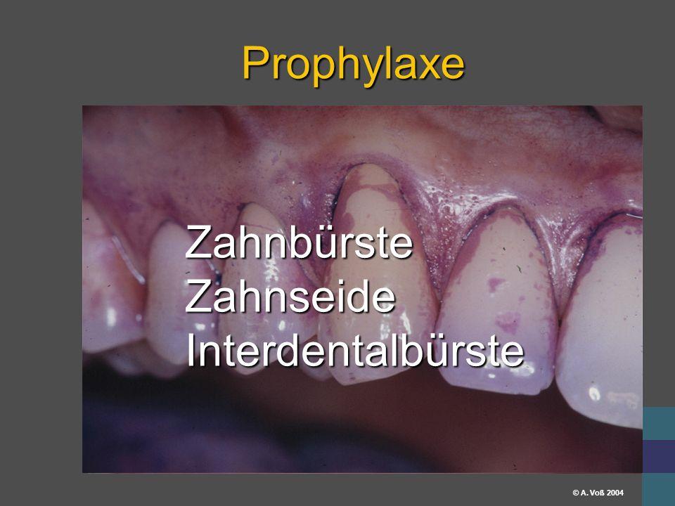 Universitätsklinikum Erlangen © A. Voß 2004 Prophylaxe ZahnbürsteZahnseideInterdentalbürste
