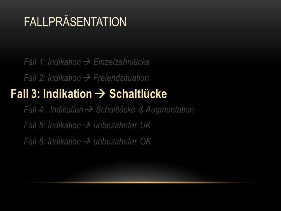 Fall 1: Indikation  Einzelzahnlücke Fall 2: Indikation  Freiendsituation Fall 3: Indikation  Schaltlücke Fall 4: Indikation  Schaltlücke & Augment