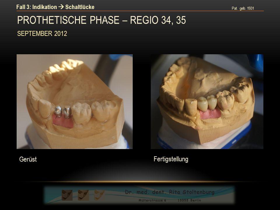 Pat. geb. 1931 Fall 3: Indikation  Schaltlücke Fertigstellung Gerüst PROTHETISCHE PHASE – REGIO 34, 35 SEPTEMBER 2012