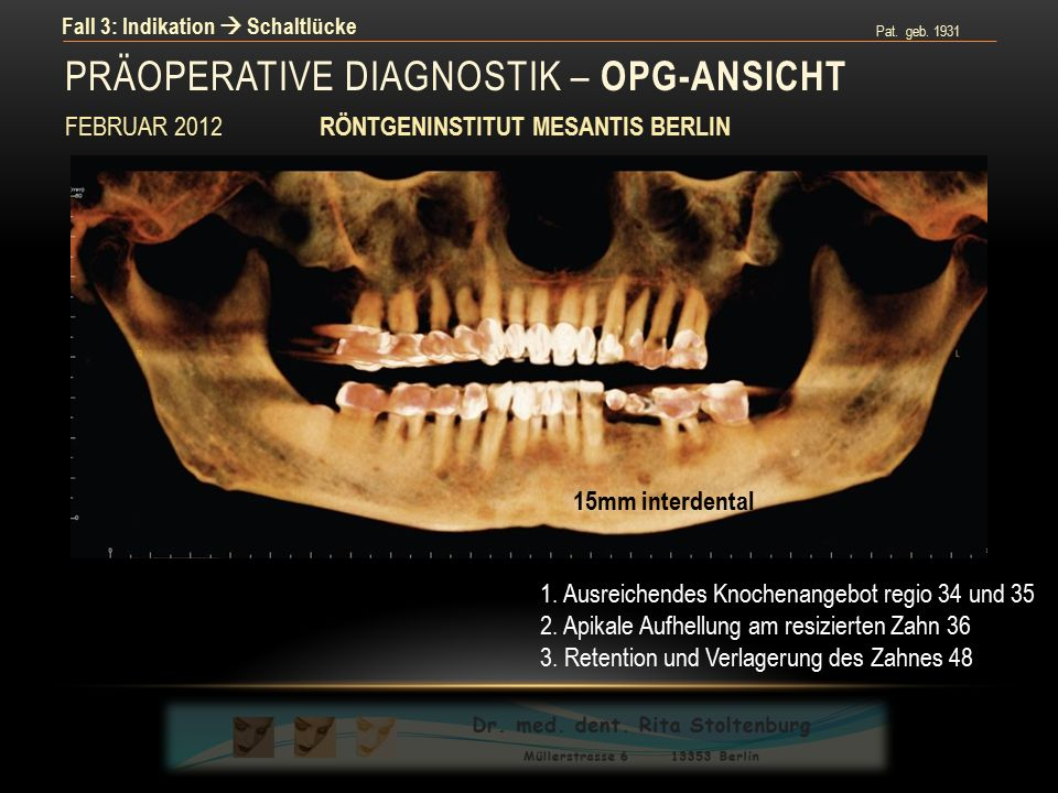 Pat. geb. 1931 Fall 3: Indikation  Schaltlücke PRÄOPERATIVE DIAGNOSTIK – OPG-ANSICHT FEBRUAR 2012 RÖNTGENINSTITUT MESANTIS BERLIN 15mm interdental 1.