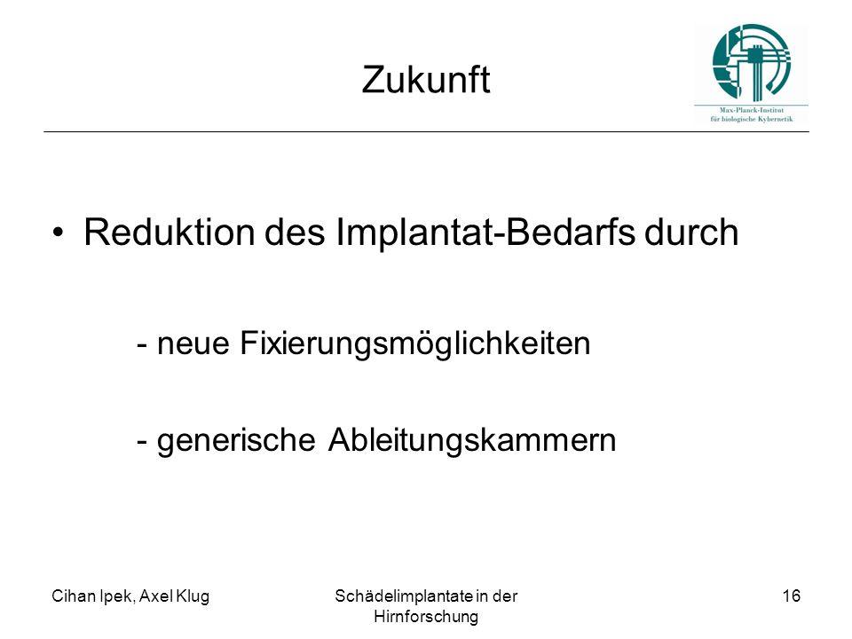 Cihan Ipek, Axel KlugSchädelimplantate in der Hirnforschung 16 Zukunft Reduktion des Implantat-Bedarfs durch - neue Fixierungsmöglichkeiten - generisc