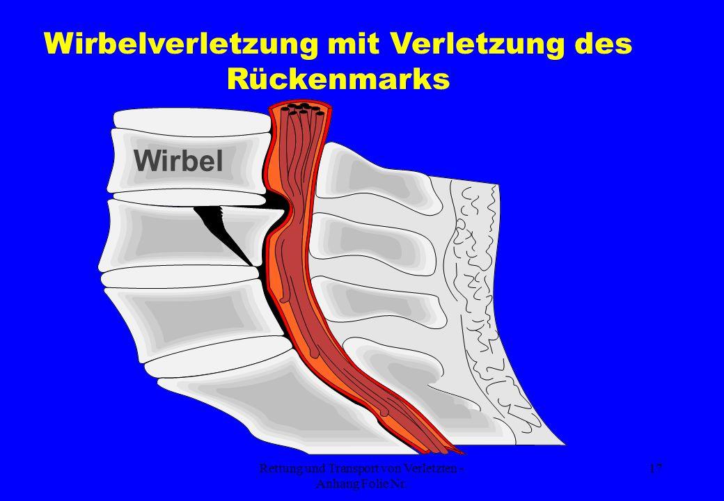 Rettung und Transport von Verletzten - Anhang Folie Nr. 17 Wirbel Wirbelverletzung mit Verletzung des Rückenmarks