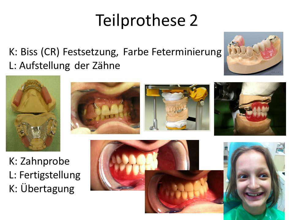 Teilprothese 2 K: Biss (CR) Festsetzung, Farbe Feterminierung L: Aufstellung der Zähne K: Zahnprobe L: Fertigstellung K: Übertagung