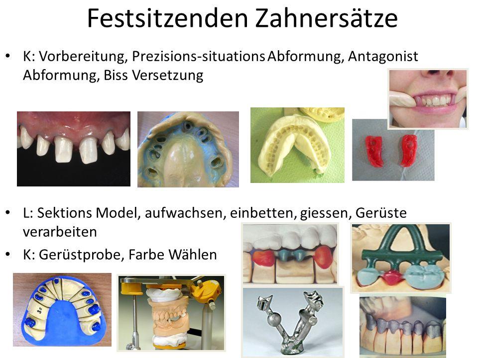 Festsitzenden Zahnersätze K: Vorbereitung, Prezisions-situations Abformung, Antagonist Abformung, Biss Versetzung L: Sektions Model, aufwachsen, einbe