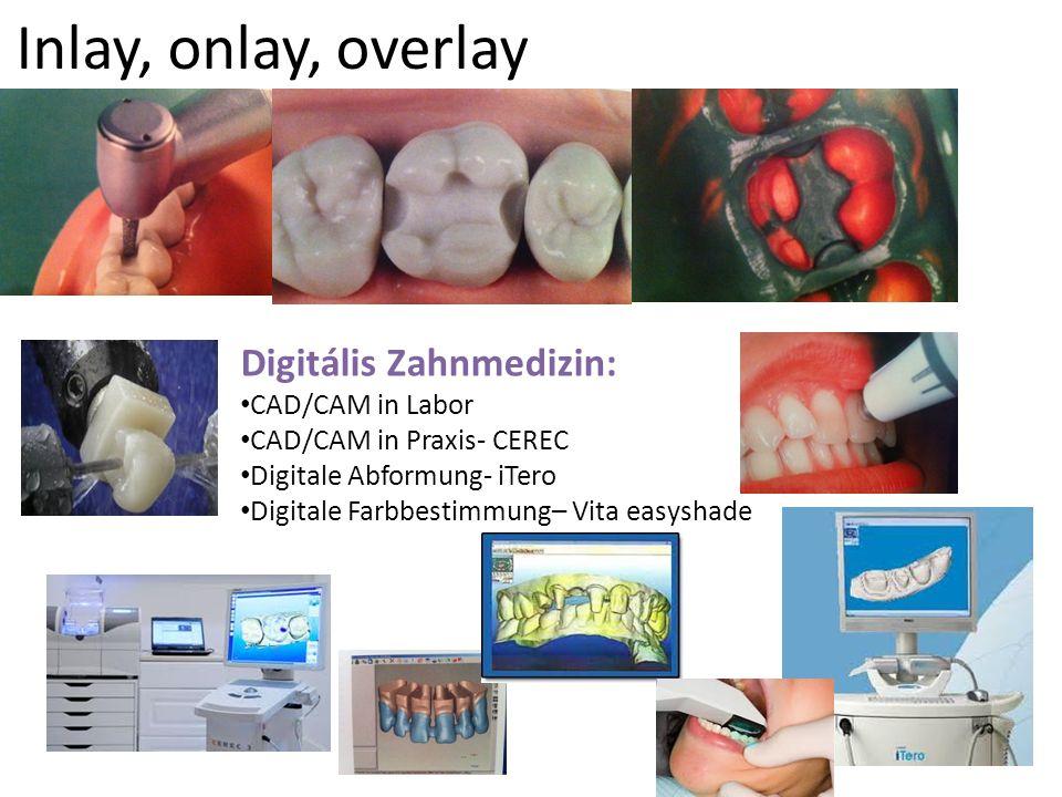 Inlay, onlay, overlay Digitális Zahnmedizin: CAD/CAM in Labor CAD/CAM in Praxis- CEREC Digitale Abformung- iTero Digitale Farbbestimmung– Vita easysha