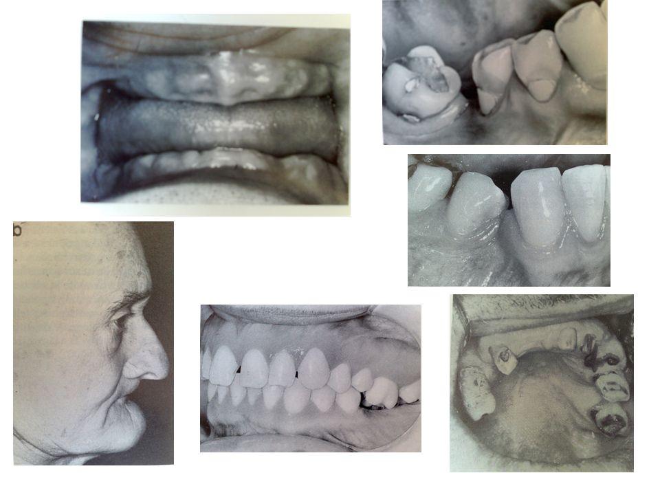 Inlay, onlay, overlay Digitális Zahnmedizin: CAD/CAM in Labor CAD/CAM in Praxis- CEREC Digitale Abformung- iTero Digitale Farbbestimmung– Vita easyshade