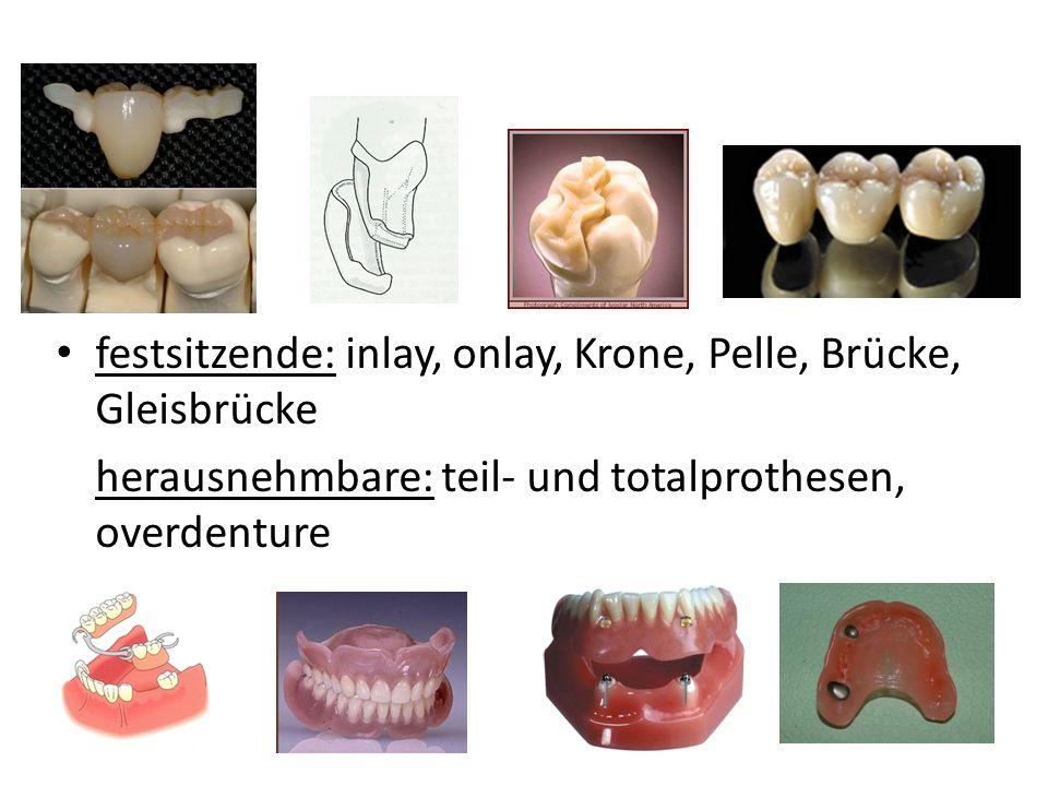 festsitzende: inlay, onlay, Krone, Pelle, Brücke, Gleisbrücke herausnehmbare: teil- und totalprothesen, overdenture