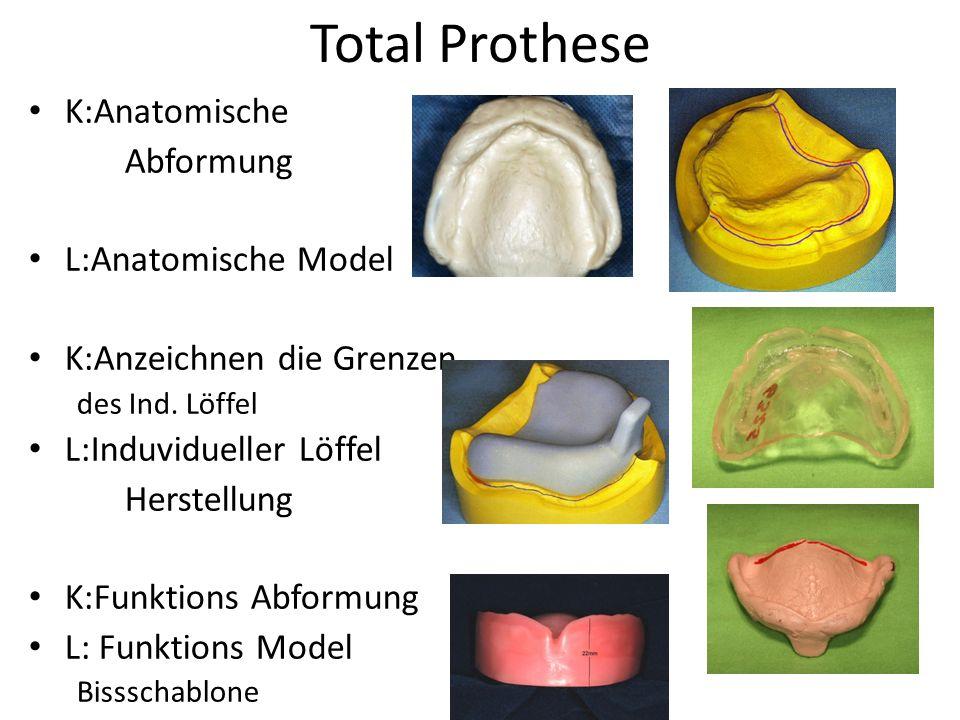 K: Biss (CO) Festsetzung, Farbe und Form Bestimmung L: Aufstellung der Zähne (Artikulator) K: Zahnprobe L:Fertigstellung K:Übertragung Kontrollen!!