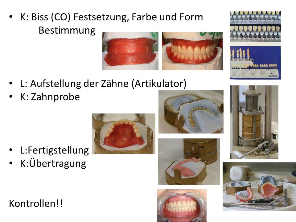 Teilprothese mit Modelguss K: Situations Abdruck, antagonist Abdruck L: Model, Modelguss, Biss Schablone