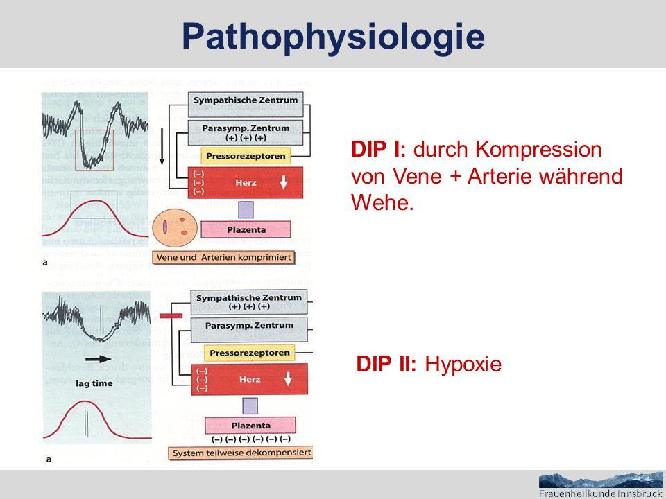 DIP I: durch Kompression von Vene + Arterie während Wehe. DIP II: Hypoxie Pathophysiologie