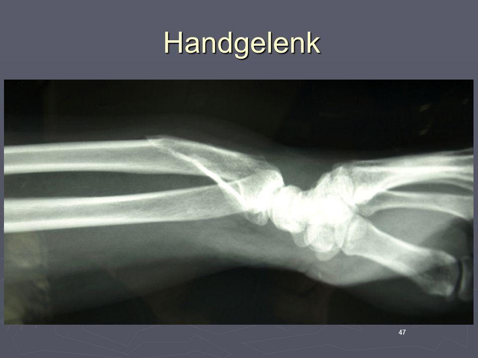 47 Handgelenk Handgelenk