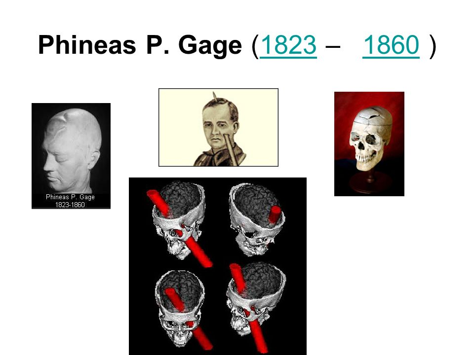 Phineas P. Gage (1823 – 1860 )18231860