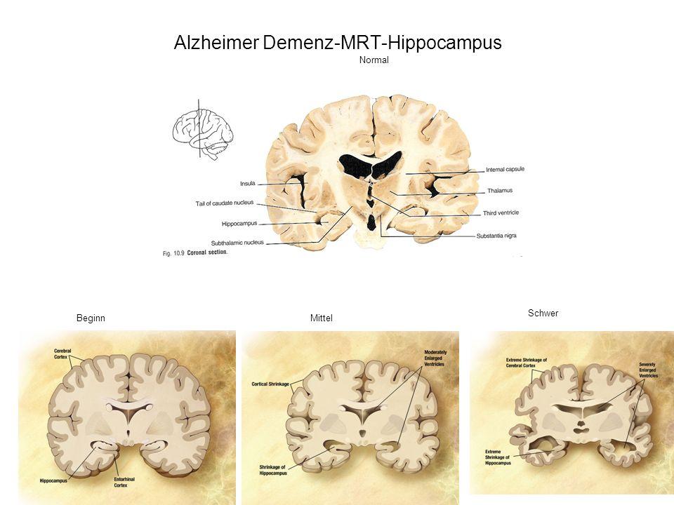 BeginnMittel Schwer Normal Alzheimer Demenz-MRT-Hippocampus