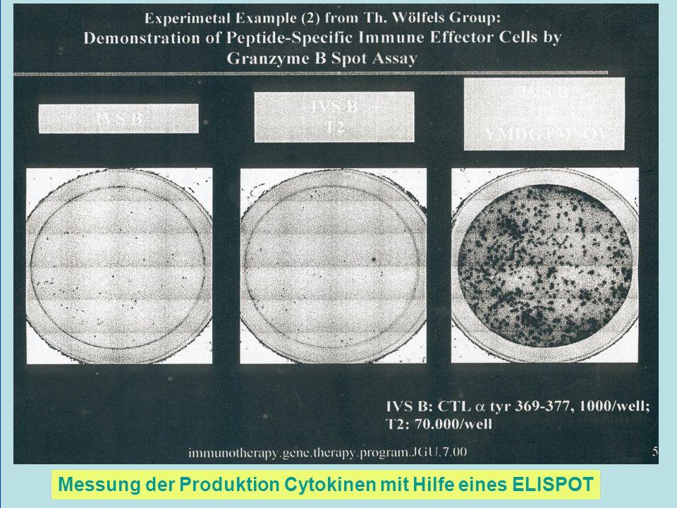 Messung der Produktion Cytokinen mit Hilfe eines ELISPOT