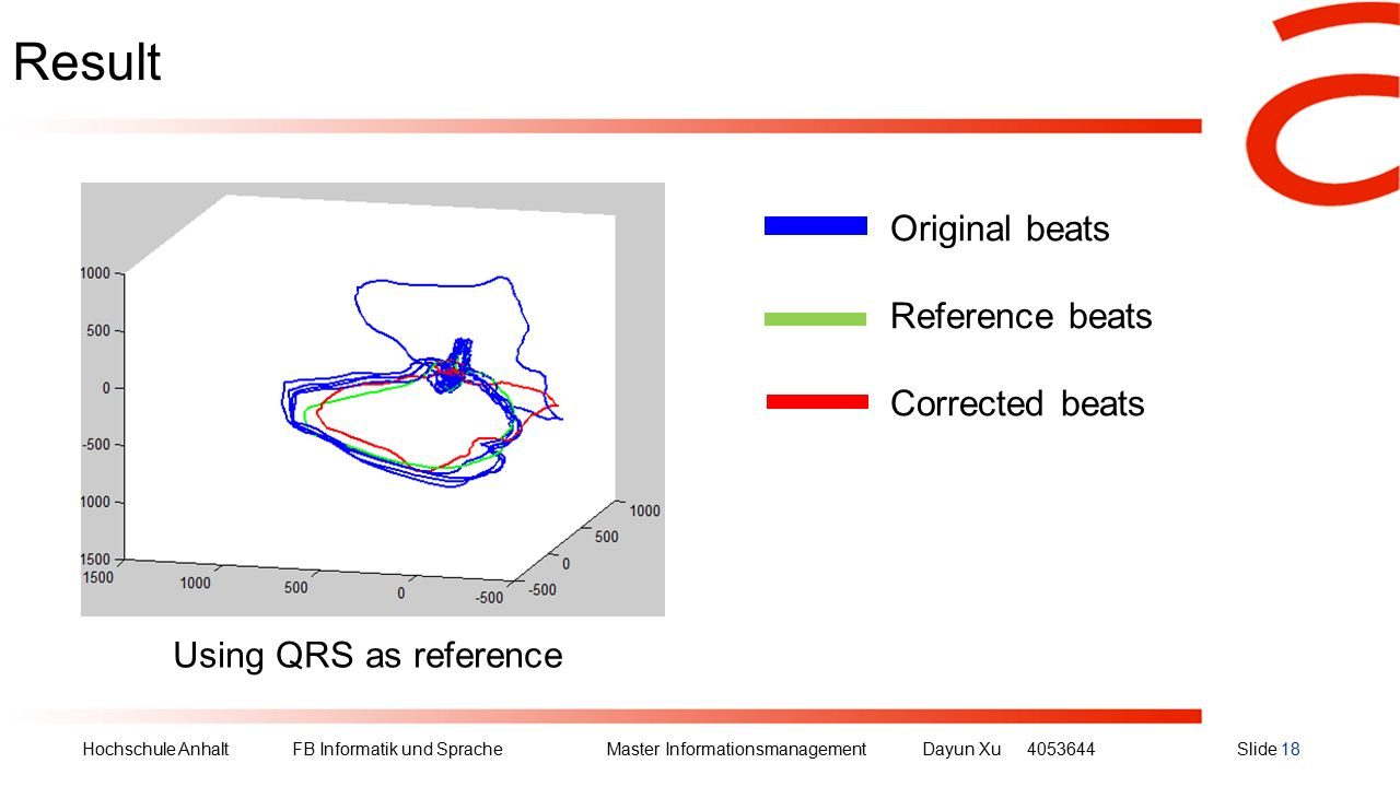Hochschule Anhalt FB Informatik und Sprache Master Informationsmanagement Dayun Xu4053644Slide 18 Result Original beats Reference beats Corrected beats Using QRS as reference