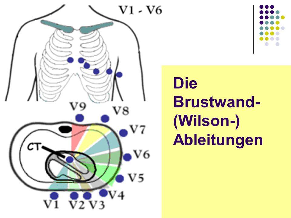 EKG für Arzthelferinnen Die Brustwand- (Wilson-) Ableitungen
