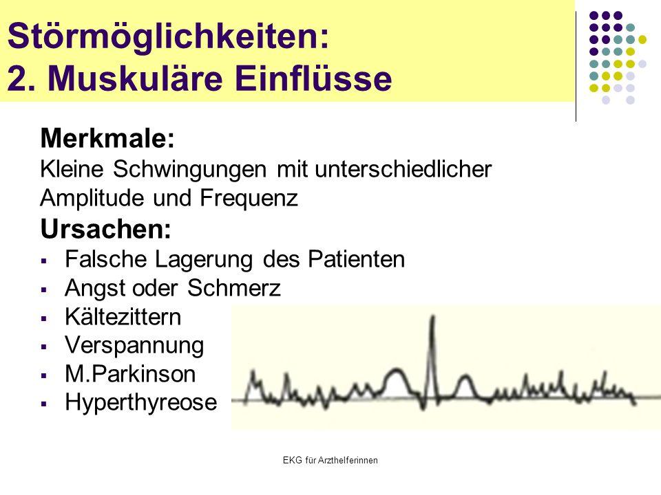 EKG für Arzthelferinnen Merkmale: Kleine Schwingungen mit unterschiedlicher Amplitude und Frequenz Ursachen:  Falsche Lagerung des Patienten  Angst