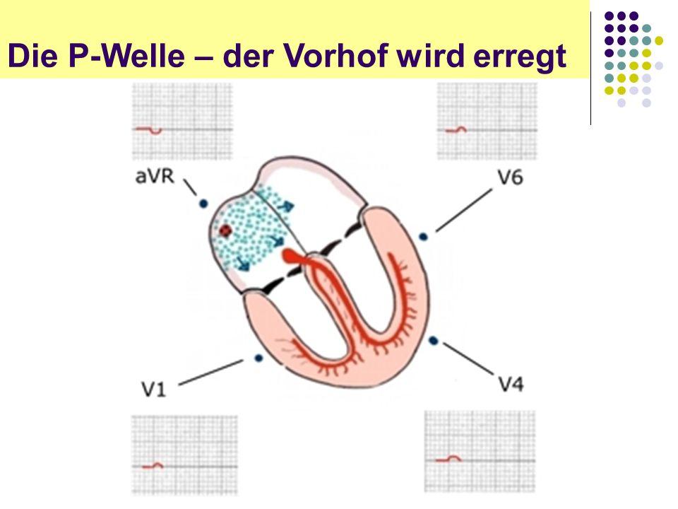 EKG für Arzthelferinnen Die P-Welle – der Vorhof wird erregt