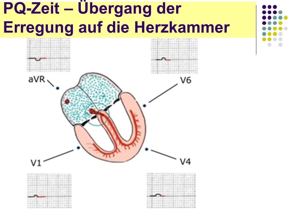 EKG für Arzthelferinnen PQ-Zeit – Übergang der Erregung auf die Herzkammer