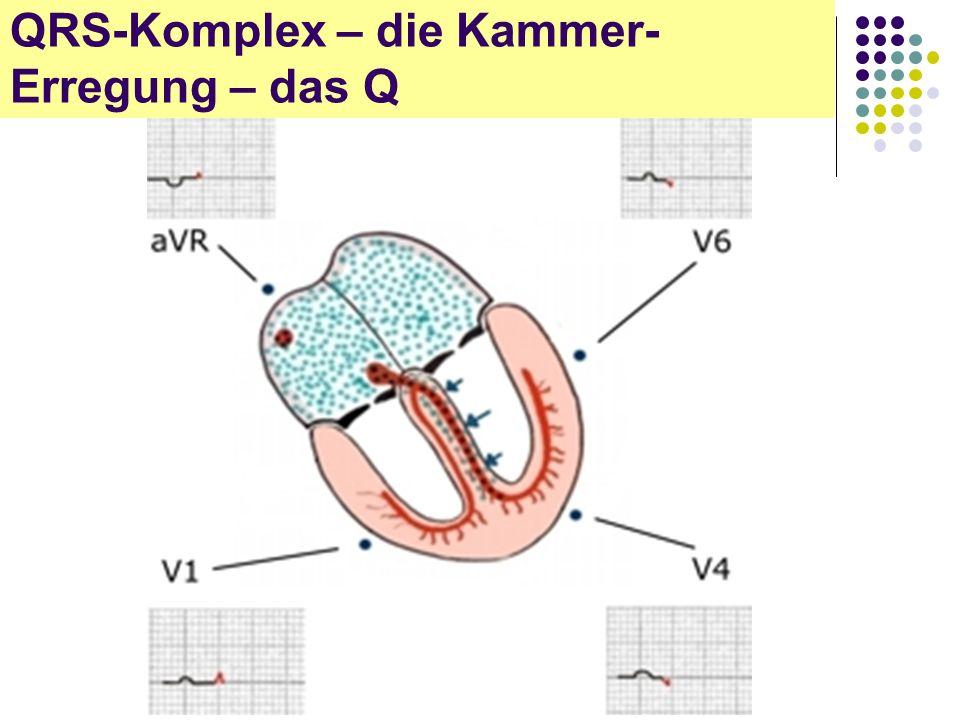 EKG für Arzthelferinnen QRS-Komplex – die Kammer- Erregung – das Q