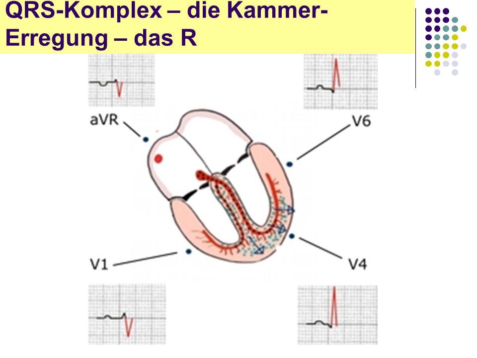 EKG für Arzthelferinnen QRS-Komplex – die Kammer- Erregung – das R