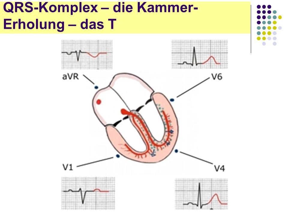 EKG für Arzthelferinnen QRS-Komplex – die Kammer- Erholung – das T
