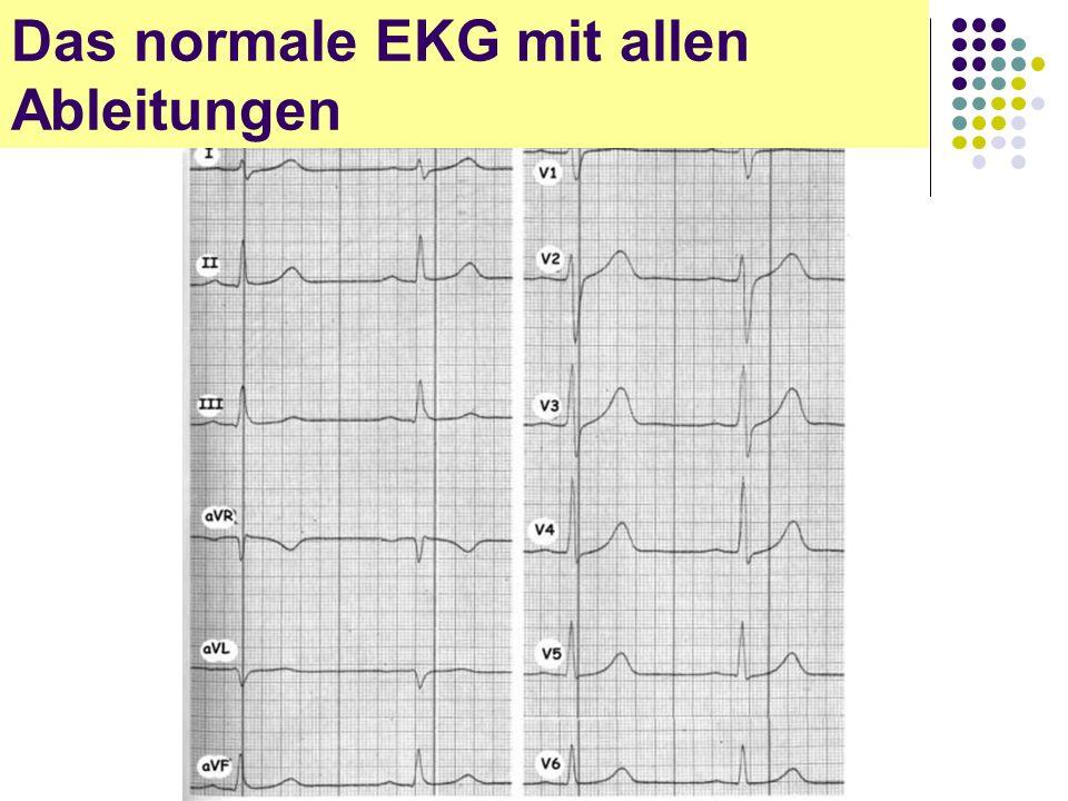 EKG für Arzthelferinnen Das normale EKG mit allen Ableitungen
