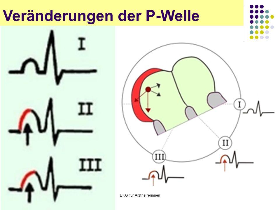 EKG für Arzthelferinnen Veränderungen der P-Welle