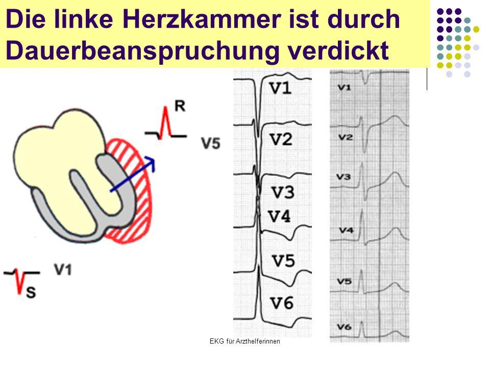 EKG für Arzthelferinnen Die linke Herzkammer ist durch Dauerbeanspruchung verdickt