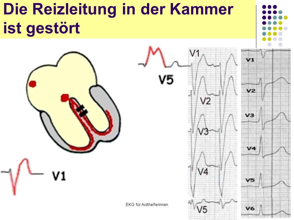 EKG für Arzthelferinnen Die Reizleitung in der Kammer ist gestört
