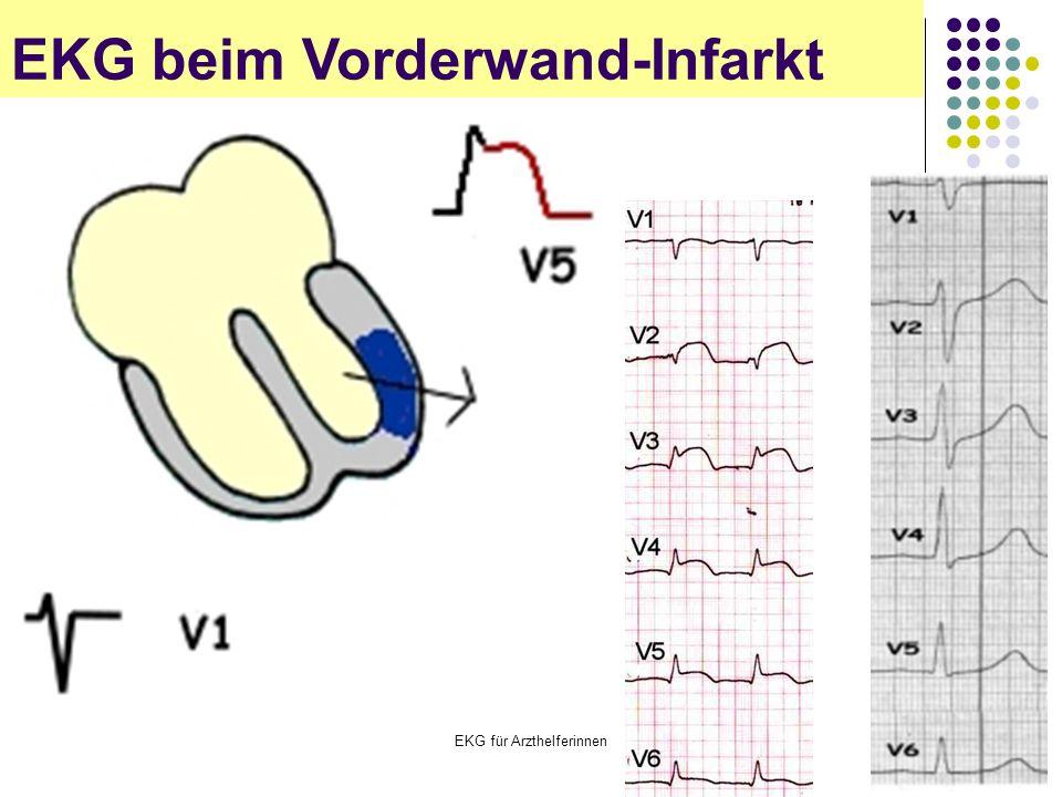 EKG für Arzthelferinnen EKG beim Vorderwand-Infarkt
