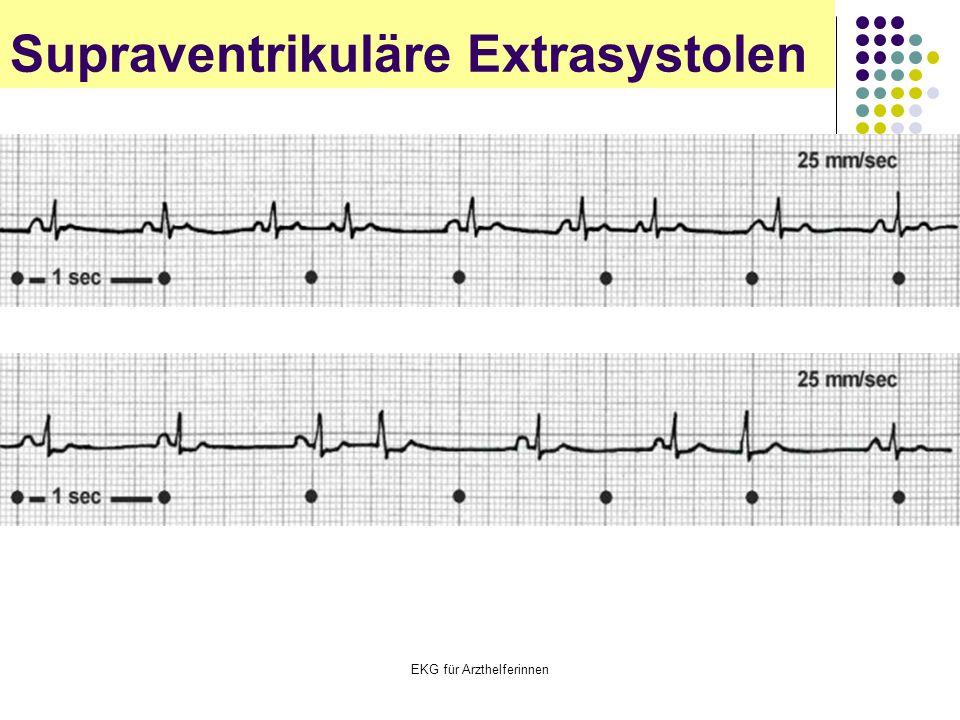 EKG für Arzthelferinnen Supraventrikuläre Extrasystolen