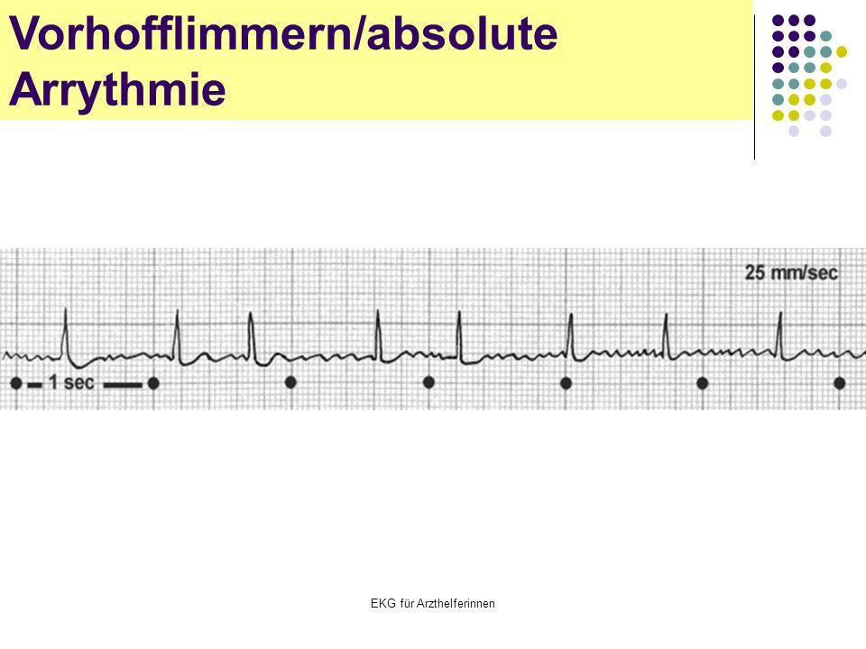 EKG für Arzthelferinnen Vorhofflimmern/absolute Arrythmie