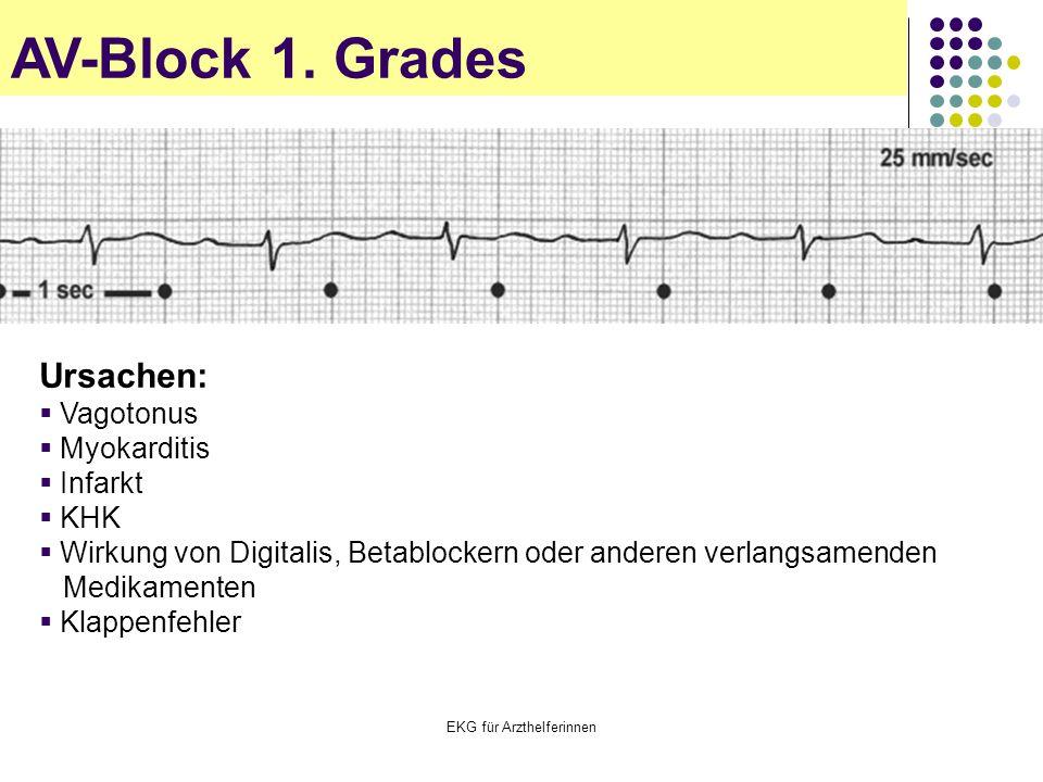 EKG für Arzthelferinnen AV-Block 1. Grades Ursachen:  Vagotonus  Myokarditis  Infarkt  KHK  Wirkung von Digitalis, Betablockern oder anderen verl