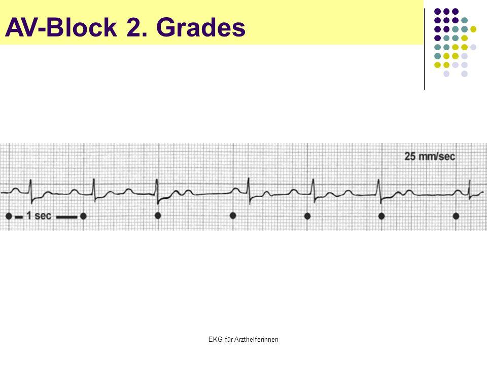 EKG für Arzthelferinnen AV-Block 2. Grades