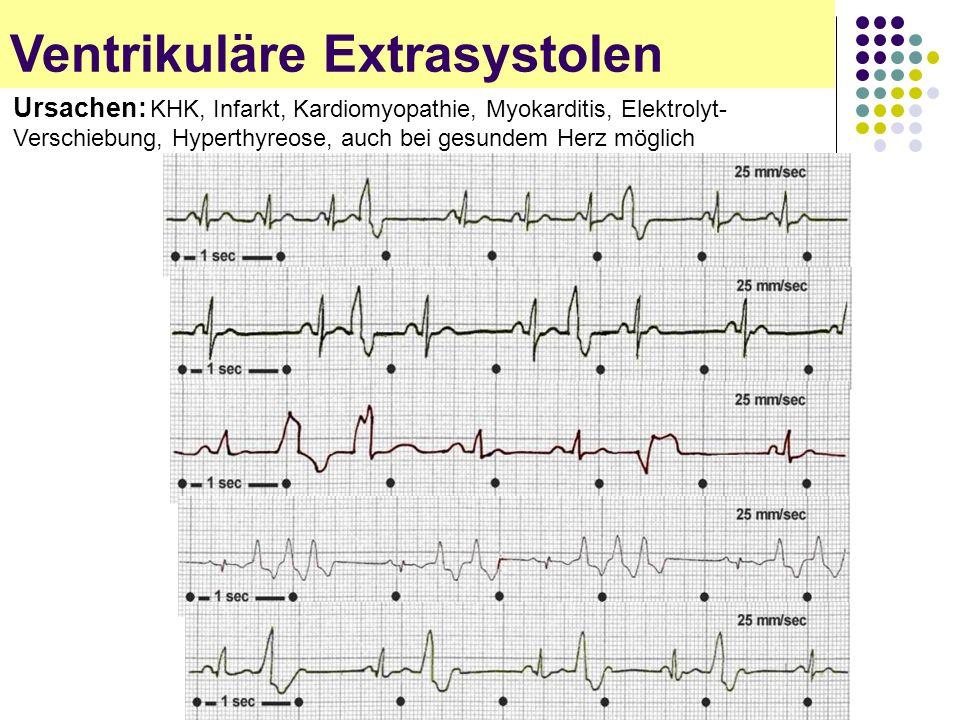 EKG für Arzthelferinnen Ventrikuläre Extrasystolen Ursachen: KHK, Infarkt, Kardiomyopathie, Myokarditis, Elektrolyt- Verschiebung, Hyperthyreose, auch