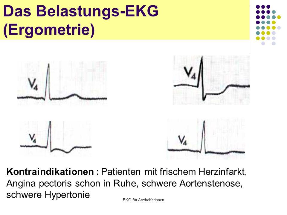 EKG für Arzthelferinnen Das Belastungs-EKG (Ergometrie) Kontraindikationen : Patienten mit frischem Herzinfarkt, Angina pectoris schon in Ruhe, schwer