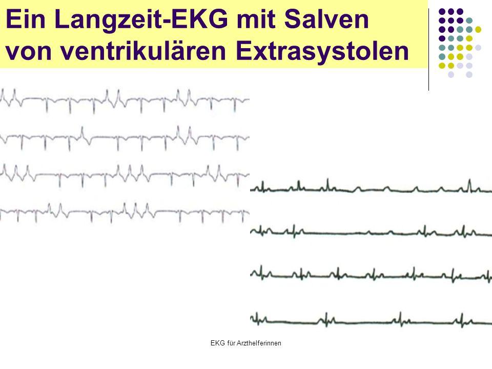 EKG für Arzthelferinnen Ein Langzeit-EKG mit Salven von ventrikulären Extrasystolen
