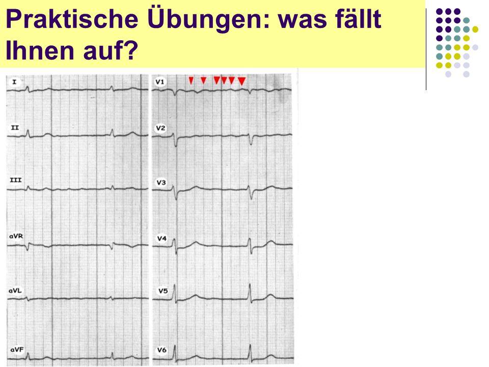 EKG für Arzthelferinnen Praktische Übungen: was fällt Ihnen auf?