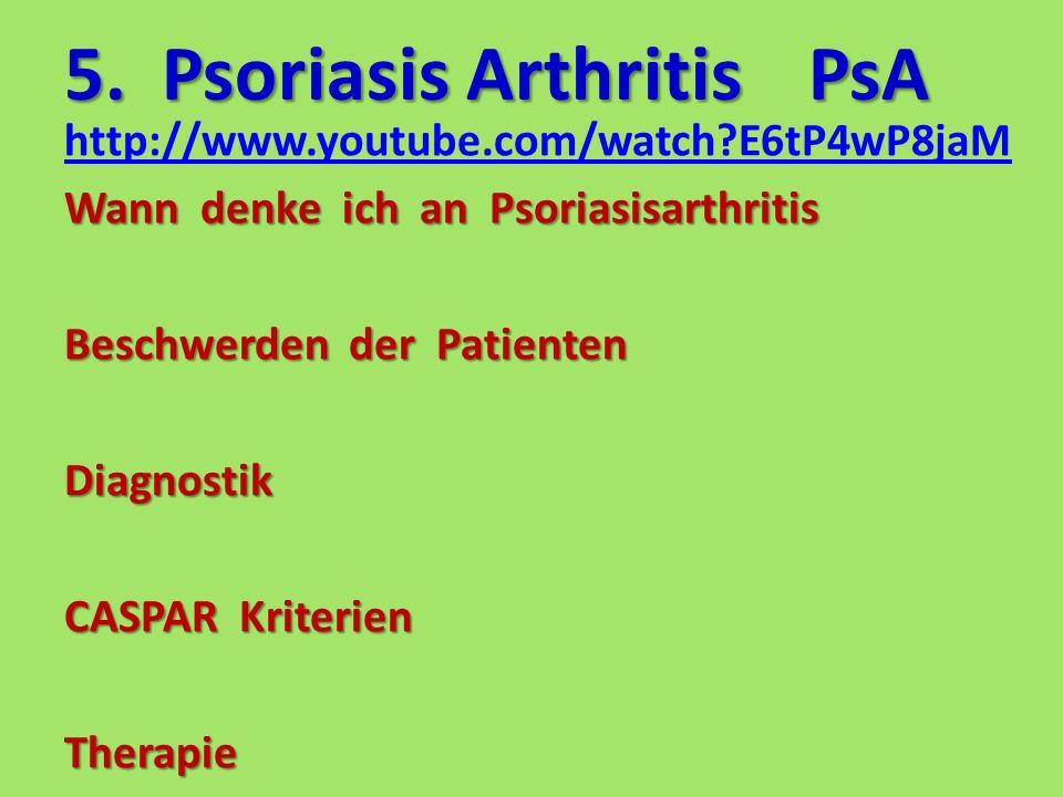 5. Psoriasis ArthritisPsA http://www.youtube.com/watch?E6tP4wP8jaM Wann denke ich an Psoriasisarthritis Beschwerden der Patienten Diagnostik CASPAR Kr