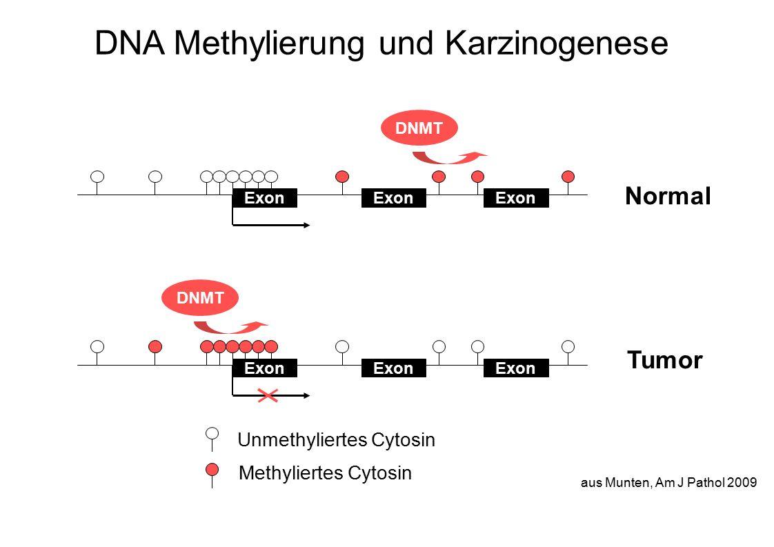 aus Munten, Am J Pathol 2009 DNA Methylierung und Karzinogenese Normal Exon DNMT Exon DNMT Tumor Unmethyliertes Cytosin Methyliertes Cytosin