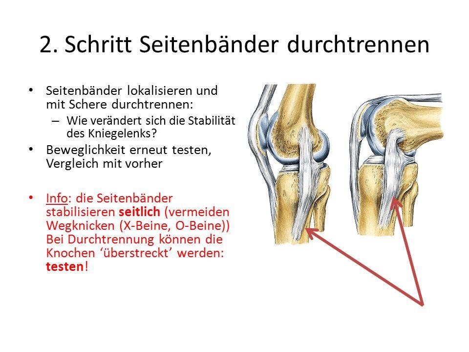 2. Schritt Seitenbänder durchtrennen Seitenbänder lokalisieren und mit Schere durchtrennen: – Wie verändert sich die Stabilität des Kniegelenks? Beweg