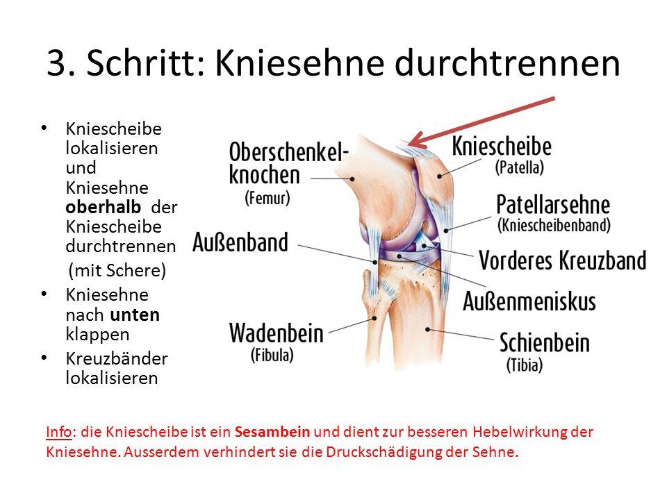3. Schritt: Kniesehne durchtrennen Kniescheibe lokalisieren und Kniesehne oberhalb der Kniescheibe durchtrennen (mit Schere) Kniesehne nach unten klap