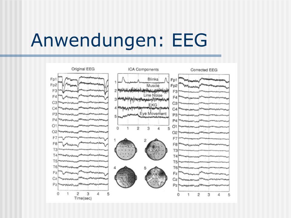 Anwendungen: EEG