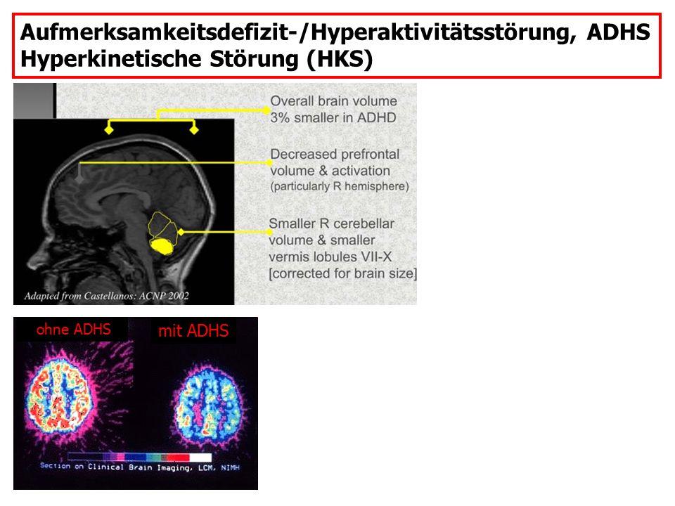 Aufmerksamkeitsdefizit-/Hyperaktivitätsstörung, ADHS Hyperkinetische Störung (HKS) ohne ADHS mit ADHS
