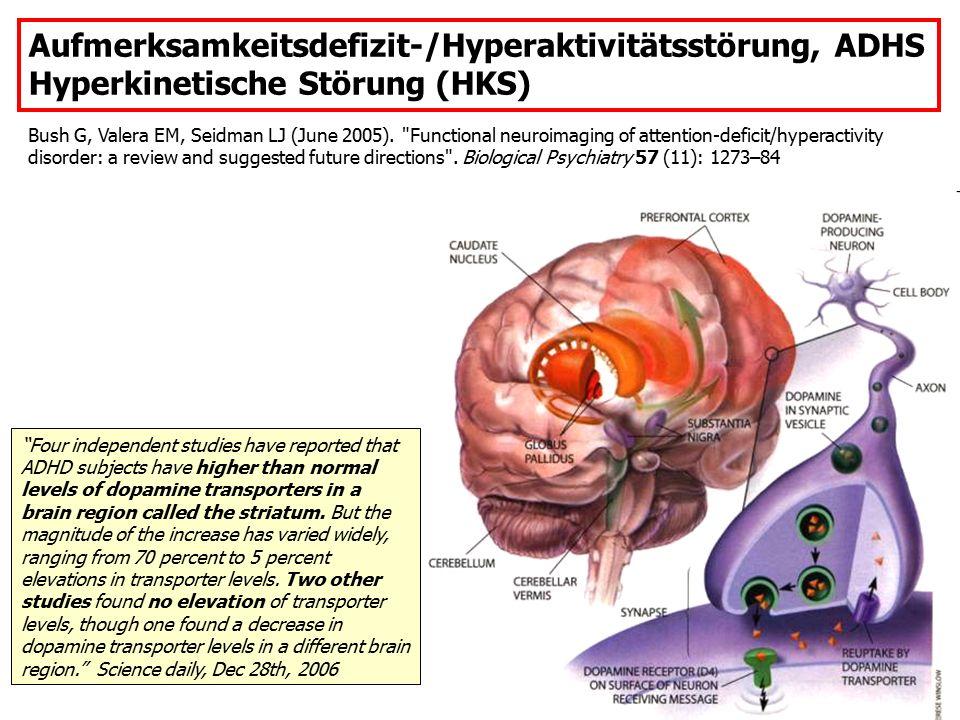 Aufmerksamkeitsdefizit-/Hyperaktivitätsstörung, ADHS Hyperkinetische Störung (HKS) Bush G, Valera EM, Seidman LJ (June 2005).