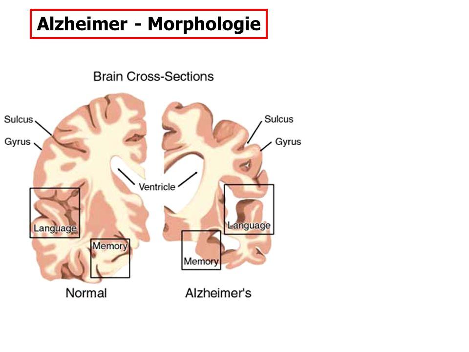 Typ-I-Schizophrenie: (Tim Crow, 1980) Typ-II-Schizophrenie: