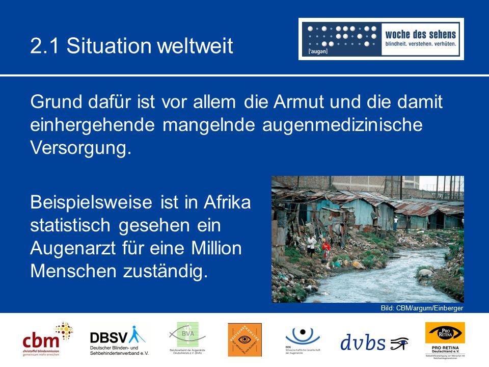 2.1 Situation weltweit Grund dafür ist vor allem die Armut und die damit einhergehende mangelnde augenmedizinische Versorgung.